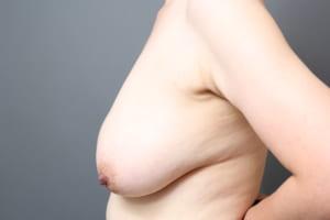 乳房縮小 ベイザー脂肪吸引