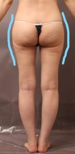 脂肪採取部位