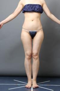 脂肪吸引 太腿