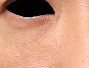 目の下 脂肪注入