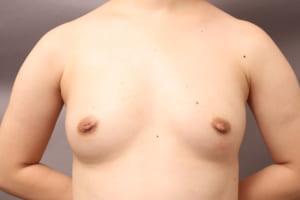 CRF豊胸 太もも脂肪吸引