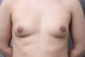 女性化乳房