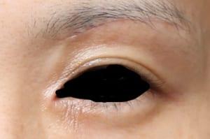 眉下切開の傷
