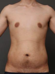 腹部脂肪吸引 男性